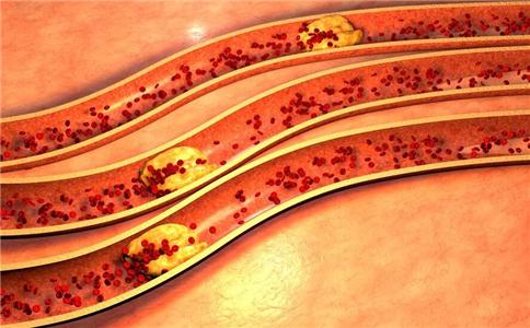 警惕动脉硬化的五大早期症状