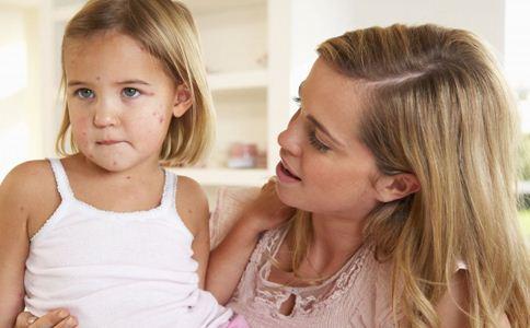 小儿麻疹的症状有哪些 小儿麻疹如何诊断 小儿麻疹的发展