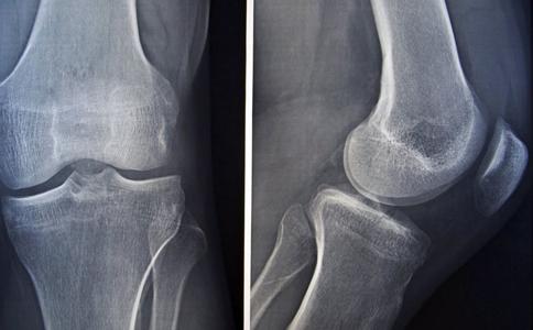 骨质增生的治疗方法有哪些 骨质增生有哪些食疗方法 骨质增生要怎么治疗
