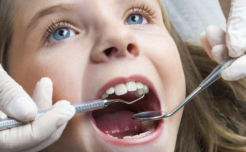 怎么自测是否得了牙周炎 牙周炎如何护理 牙周炎怎么护理