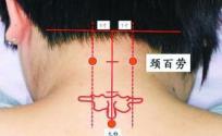 按摩颈百劳穴位的作用 颈百劳穴的功效与作用 颈百劳穴的功效