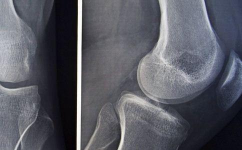 骨质增生有哪些误区 骨质增生要补钙吗 骨质增生要做手术吗