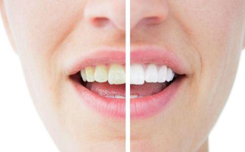 牙齿黄吃什么好 牙齿黄怎么治疗 牙齿黄怎么办
