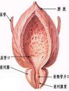 前列腺囊肿是什么病 前列腺囊肿病理介绍