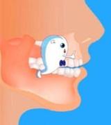 日常中该怎么保健牙齿 不妨做做牙齿保健操
