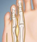 中医教你从脚部看健康 脚的不同形状预示不同疾病
