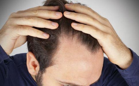 梅花针治疗斑秃 斑秃如何治疗 梅花针怎么治疗斑秃