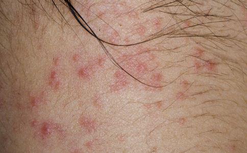 导致接触性皮炎发生的原因有哪些 接触性皮炎的病因有哪些 接触性皮炎的症状有哪些