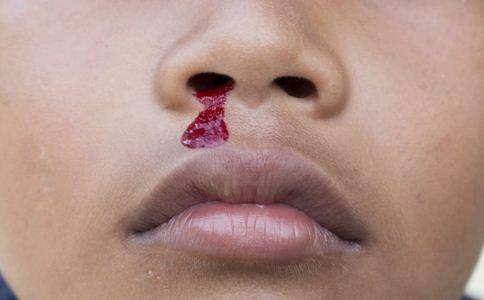 突然流鼻血是怎么回事 流鼻血怎么止血 流鼻血怎么办