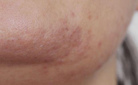 接触性皮炎的症状有哪些 接触性皮炎的危害有哪些 接触性皮炎会带来哪些危害