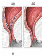 治痔疮的手术过程图解 痔疮手术后要及时护理