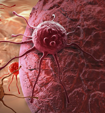癌症能治愈吗 癌症的治疗方法 癌症怎么治