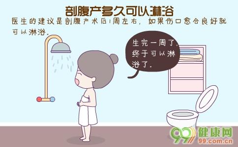 剖腹产后多久可以淋浴 剖腹产后淋浴注意事项 剖腹产淋浴最佳水温