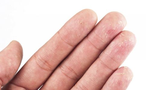 用什么治疗冻疮效果最好 如何治疗冻疮 如何预防冻疮