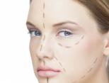 女人鼻尖整形方法有哪些?