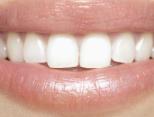 牙齿矫正方法有哪些 矫正牙齿试试这5招