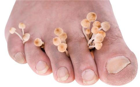 中医如何去脚臭 脚臭怎么办 引起脚臭的原因是什么
