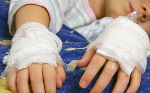 怎么预防小儿烧伤 小儿烧伤怎么处理 预防小儿烧伤要注意什么