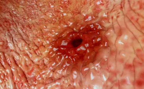 怎么治疗胃溃疡 治疗胃溃疡吃什么好 治疗胃溃疡的方法有哪些