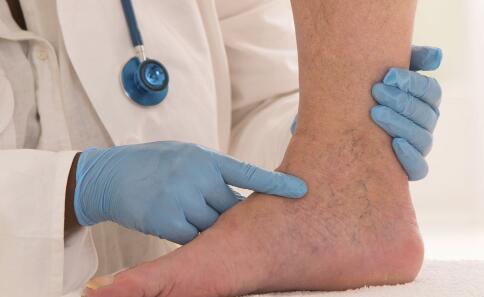 脚踝扭伤怎么处理 脚踝扭伤的处理方法有哪些 脚踝扭伤如何处理才好