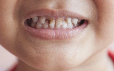 如何美白牙齿 如何使牙齿快速美白 怎么美白牙齿