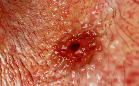 治疗胃溃疡有什么偏方 如何治疗胃溃疡 预防胃溃疡的方法
