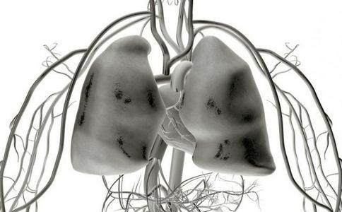 怎么预防矽肺 矽肺是如何形成的 矽肺如何预防
