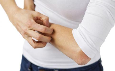 接触性皮炎多久能好 治疗接触性皮炎 如何治疗接触性皮炎