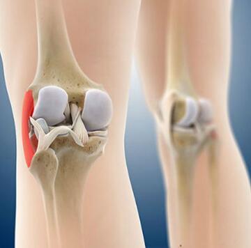 膝盖3D结构解剖图揭秘 2