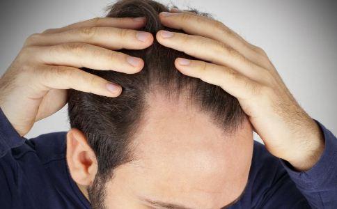 斑秃如何治疗 梅花针治疗斑秃 中医治疗斑秃