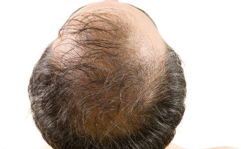 如何预防脱发 预防脱发吃什么 脱发的原因有哪些