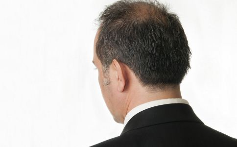 男性脱发能治好吗 脱发要怎么治疗 脱发吃什么食物有助治疗