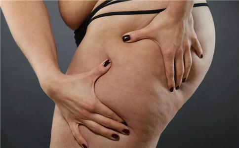 吸脂能减肥吗 吸脂有副作用吗 哪些人不宜吸脂