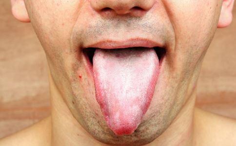舌癌如何治疗 治疗舌癌有什么方法 舌癌的症状有哪些