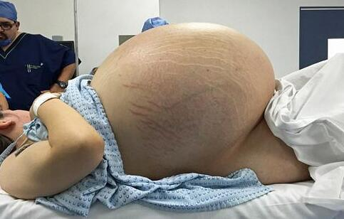 女子卵巢重32公斤 卵巢囊肿如何治疗 卵巢囊肿的预防