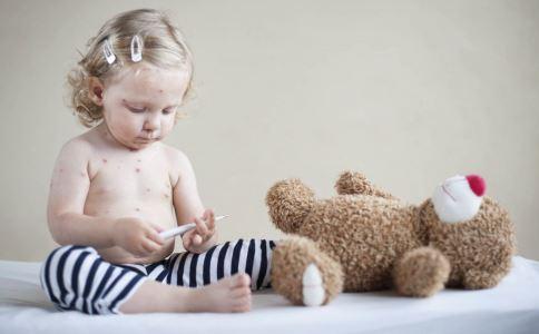 儿童发水痘该怎么办 发水痘该怎么办 春季儿童发水痘该怎么办