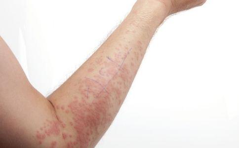 接触性皮炎的病因有哪些 导致接触性皮炎发生的原因有哪些 接触性皮炎的症状有哪些