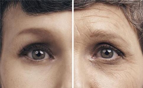 不想长皱纹怎么办 抗衰老的方法有哪些 女人如何抗衰老