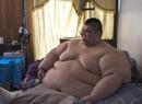 世界最胖的人减肥成功 治疗减去170公斤