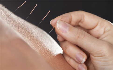 针灸能治疗阳痿吗 针灸有什么好处 针灸如何治疗阳痿