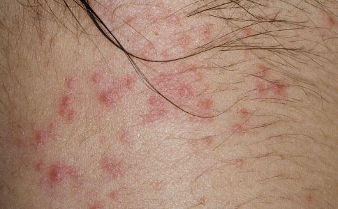 接触性皮炎治疗 接触性皮炎怎么治疗 接触性皮炎该如何治疗