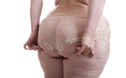 局部肥胖的原因是什么 局部肥胖要怎么减肥 局部肥胖的减肥方法是什么