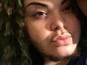 24岁女孩长胡子 竟是多囊卵巢综合征作祟