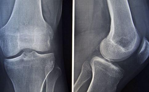 骨折怎么办 骨折如何预防 骨折吃什么好