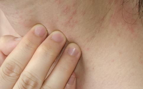 接触性皮炎治疗原则 接触性皮炎怎么办 接触性皮炎怎么根治