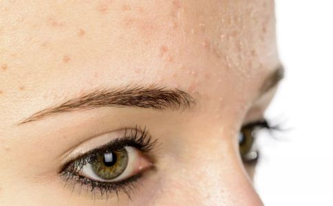 激素药膏使用注意事项 什么是激素脸 长期使用激素药膏的副作用