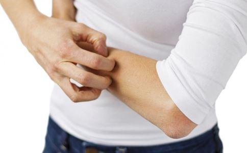 身上荨麻疹怎么办 身上长荨麻疹怎么办 身上荨麻疹