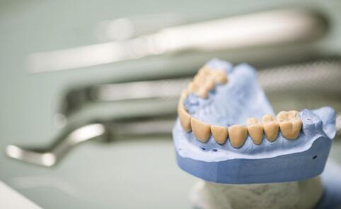 如何预防牙周炎 牙周炎的预防方法有哪些 怎么预防牙周炎比较好