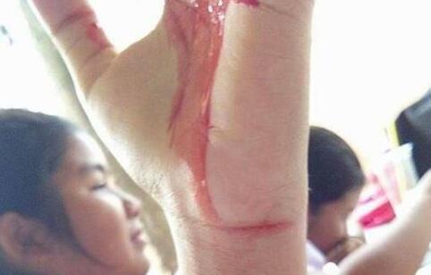 泰国女孩患上神秘怪病 泰国女孩患怪病 什么是血汗症