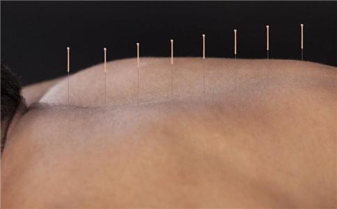 针灸会感到疼痛吗 针灸要注意什么 针灸会不会疼痛